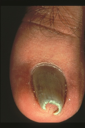Under The Microscope Pincer Nails Health Nails Magazine