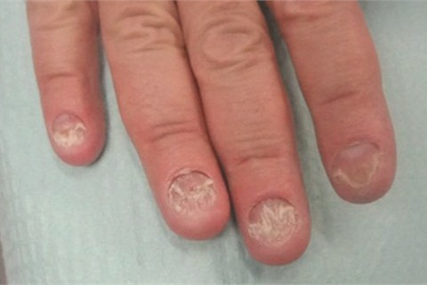A Day in the Life of a Nail Expert: Fungal Infections - Health ...
