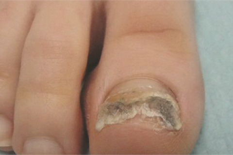 """<p>This toenail tested positive for typical fungus but there is additionally a bacteria called pseudomonas (often referred to as """"greenies"""" in nail salons) that is responsible for imparting the green hue to this nail plate.</p>"""