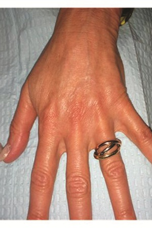 <p>Two months post treatment with Radiesse. The veins are significantly less prominent and the hand has an overall more youthful appearance.</p>