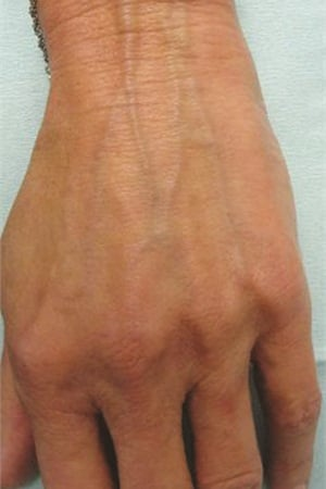 <p>In this 68-year-old female, note the prominence of veins and wrinkled appearance of the skin distal to the wrist.</p>