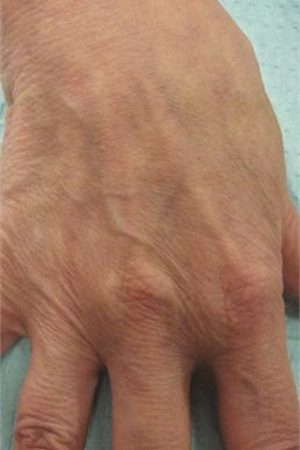 <p>Pre-treatment: In this 75-year-old female, note the prominent veins and tendons and the wrinkled appearance of the skin.</p>