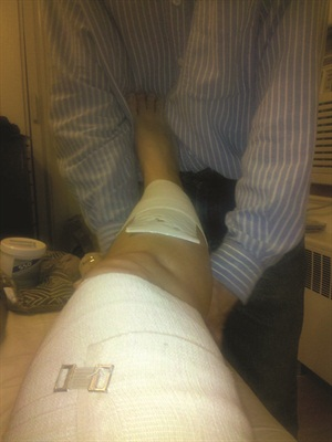 <p>My husband helped me dress and wrap my wounds so I could go to work.</p>