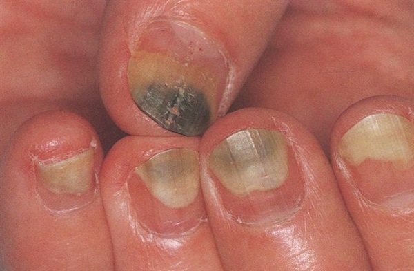 A Day In The Life Of A Nail Expert  January 2015 - Health