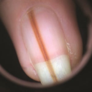 A biopsy of this nail revealed a mole with irregular features. It was removed due to the risk of progression to melanoma.