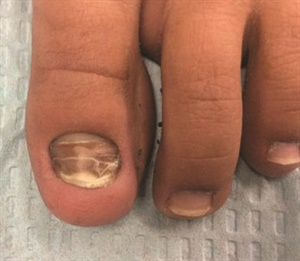 <p>In retronychia, the new nail growing from the matrix pushes the old one upward, causing inflammation at the proximal nail fold and interrupting nail growth.</p>