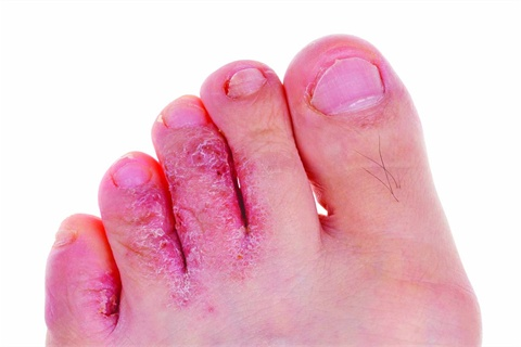 dry skin under toes