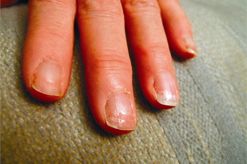 Weakened Nails After Gel Removal - Technique - NAILS Magazine