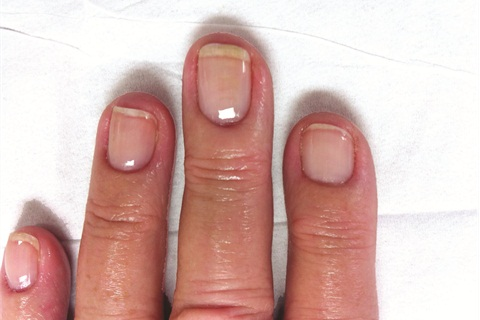 How To Lcn Natural Nail Boost Gel Technique Nails Magazine