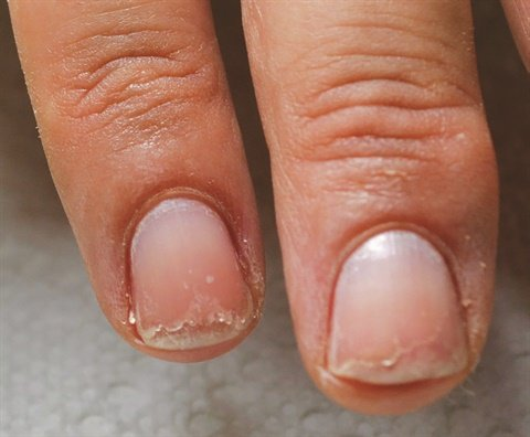 <p>Delamination is characterized by peeling and flaking at the free edge of the nail. (Photo courtesy of Famous Names)</p>