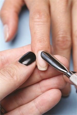 Improper Nail Prep