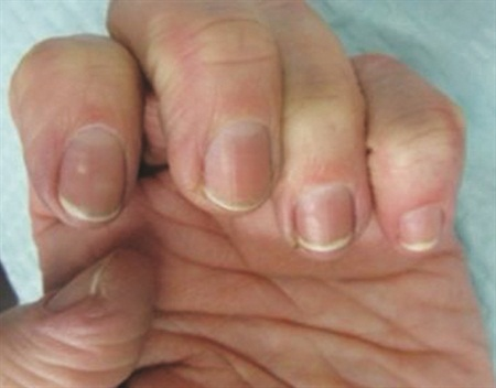Before and after: A fungal culture on this patient's nails grew Candida (yeast). She responded beautifully to treatment with an oral anti-yeast medication as well as a strict irritant avoidance regimen.
