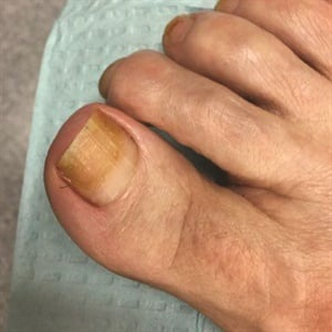 Prolonged polish wear was the cause of yellowing on this toenail.
