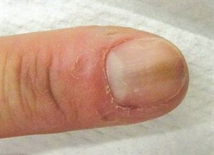 <p>Melanonychia can result from biting or tearing at hangnails near the cuticle.</p>