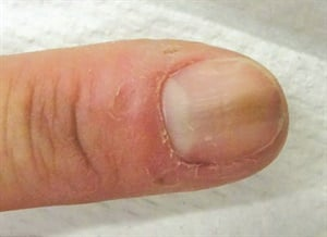 Melanonychia can result from biting or tearing at hangnails near the cuticle.