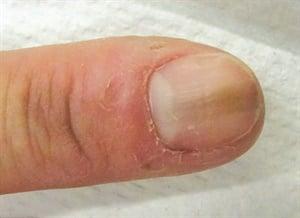 how to stop biting hangnails