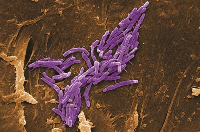<p>Mycobacterium fortuitum bacteria;By CDC/ Margaret M. Williams; Janice Haney Carr </p>