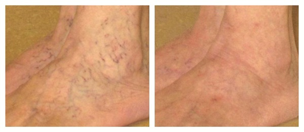 <p>[before and after] Sclerotherapy or laser treatments are used to rememdy enlarged veins or abnormally shaped spider-type blood vessels.</p>