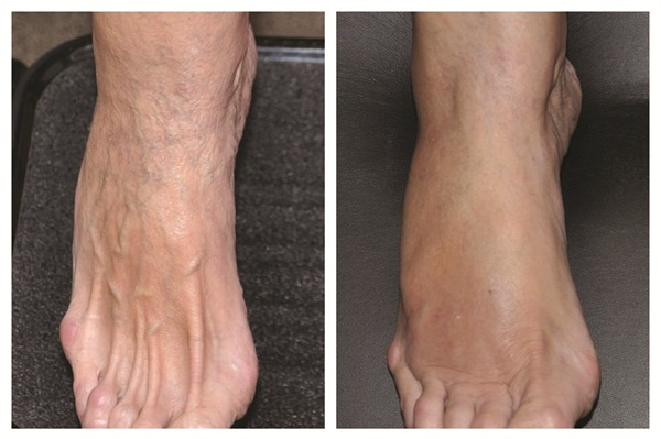 [before and after] Typically, rejuvenation treatmentsevery two to three months will keep the foot'sskin healthy and glowing.