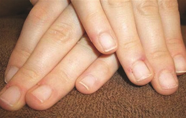 What Causes Some Nails To Be Long And Strong Others Short Soft Many Things Can The Cause Each Has A Different Solution