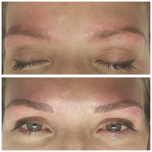 Before and after images demonstrate the result of the Microblading 3-D Brow Enhancement service.