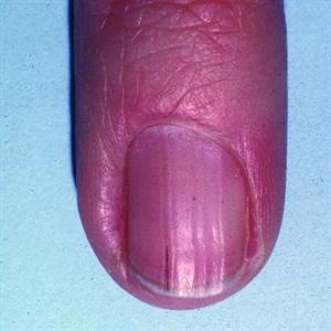 Brown Toenail Discoloration