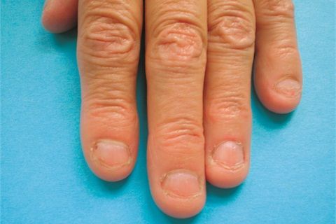 Clients Who Suffer From Chronic Onychophagy Or Severe Nail Biting May Benefit The Attention Of A Good Tech