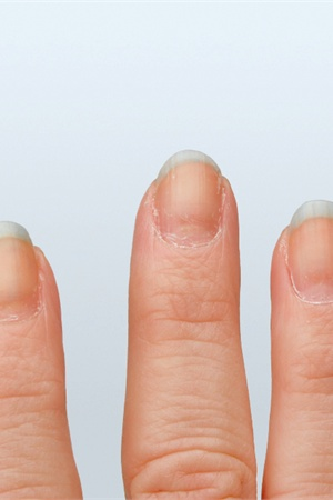 Gonails nail growth treatment technique nails magazine - Easy home remedy strengthen dry brittle nails ...
