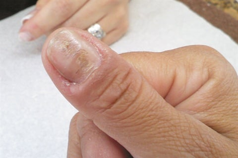 This Client Has A Chronic Paronychia With Resultant Nail Dystrophy And Possibly Habit Tic Deformity You Are Right To Have Noticed That The Cuticle Is