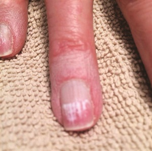 <p>Winner #3: Pamela Black from Hugo, Minn., won an IBX Duo Pack. Her entire nail used to look like the side closest to the free edge. (Results show six applications.)</p>