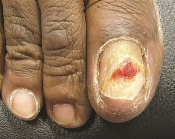 <p>Chemotherapy-induced pyogenic granuloma of the nail bed</p>