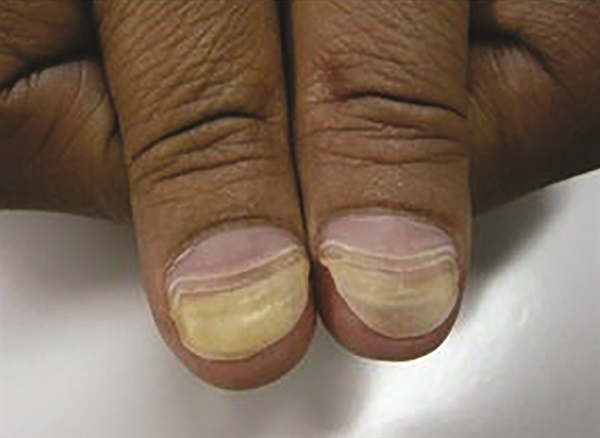 <p>Chemotherapy-induced onycholysis</p>