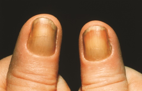 Note the yellow, thick nails and lack of a cuticle that are symptoms of yellow nail syndrome.