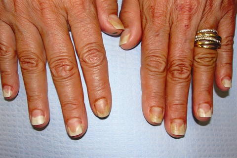 Onycholysis Is A Condition That Causes Nails To Separate From The Nail Bed Beginning At Distal End Of Under Free Edge