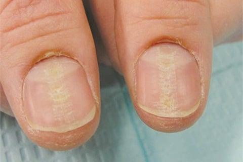 how to stop peeling nails habit
