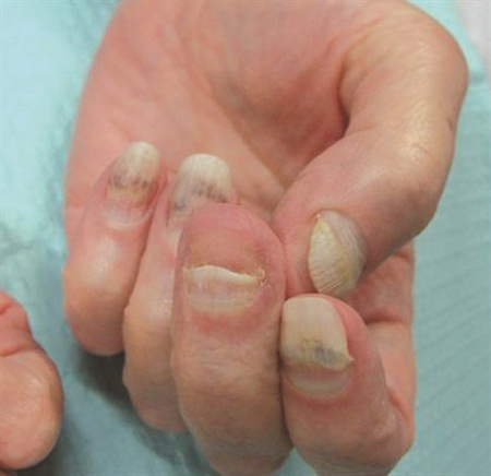 Hemorrhagic onycholysis  secondary to side effect from chemotherapy. Note the copper/brown patches that are secondary to bleeding at the nail bed.