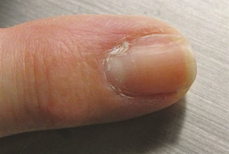 <p>Myxoid cyst resulting in a longitudinal groove of the nail.</p>