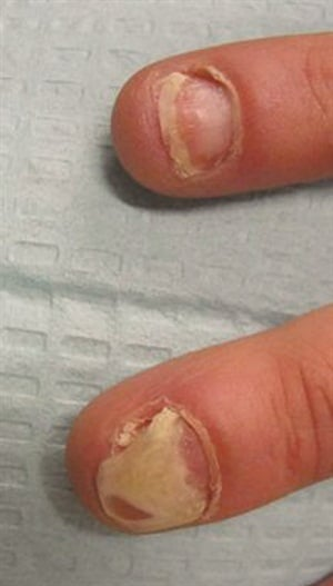Onycholysis (nail separation) secondary to nail psoriasis.
