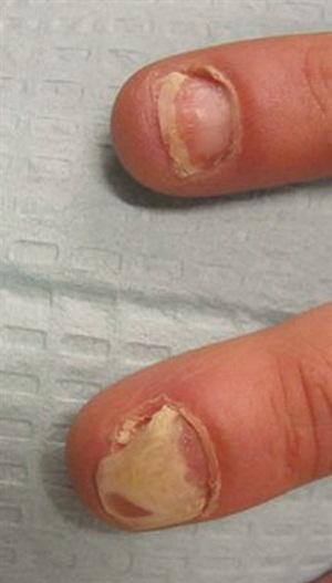 <p>Onycholysis (nail separation) secondary to nail psoriasis.</p>