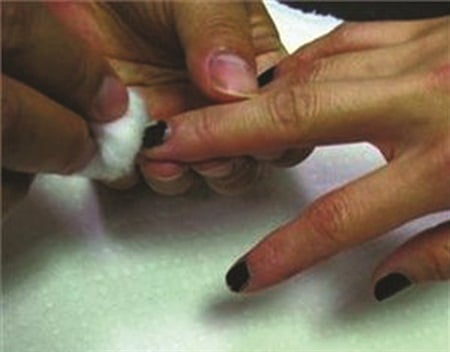 <p>Polish staining is more common with darker polish shades because there is more pigment that can potentially migrate and leach into the surface of the nail.</p>
