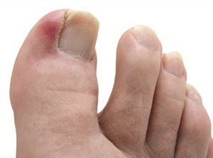 Ingrown toenail sufferers can soak the toe in Epsom salts to help reduce inflammation.