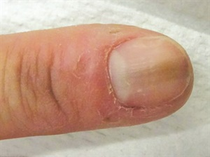 <p>Melanonychia can result from repetitive trauma to the lunula area.</p>