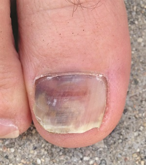 This injury occurred when the toe was repeatedly forced into the tip of a hiking boot while walking downhill.