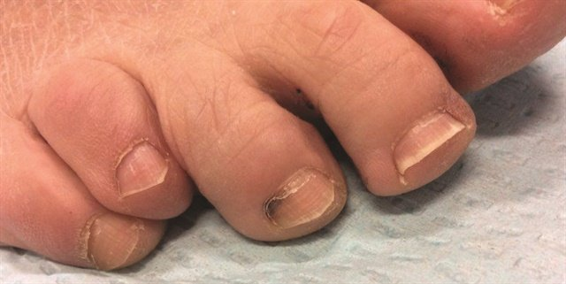 Subungual hematomas can result from acute injuries, such as getting your finger stuck in a door, or have a less traumatic cause, such as a poorly fitting shoe.