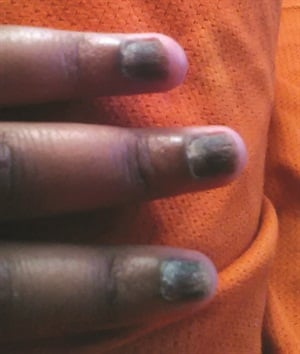 <p>Twenty-nail dystrophy submitted by Aislynn Thomas.</p>