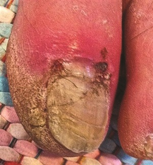 <p>Stubbed toe on diabetic client submitted by Jill Wright</p>