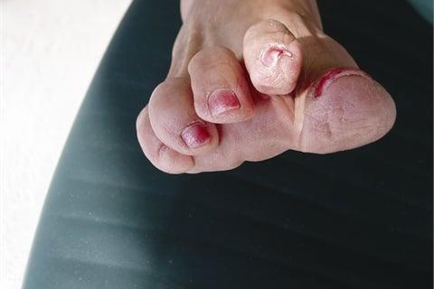 Prevent Pincer Nails Health Nails Magazine