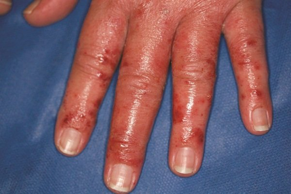 Symptoms Allergic Contact Dermais To Nail Products Usually Occurs Days After Exposure And May Show Up As Redness Swelling Blisters Crusting