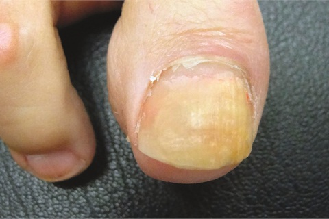 <p>When the nail is separated (onycholysis), infections such as yeast, bacteria, and fungus can occur.</p>