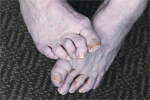 <p><span>Hammertoe is a bending </span><span>and hardening of the </span><span>joints in the second, third, </span><span>fourth, or fifth toes.</span></p>